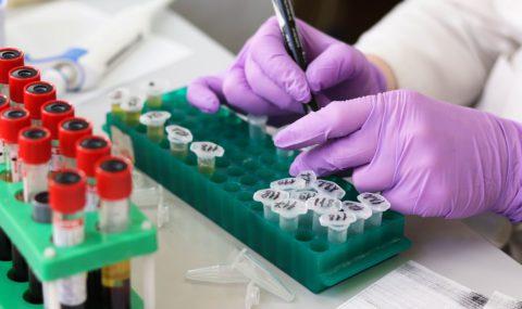 No artigo de hoje, vamos falar sobre o Programa de Acreditação de Laboratórios Clínicos (PALC), além de descrever o que é a acreditação, para que serve e quais os benefícios de aplicá-lo em seu laboratório.
